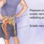 All About Sciatica or back pain