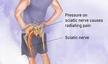 All About Sciatica treatment