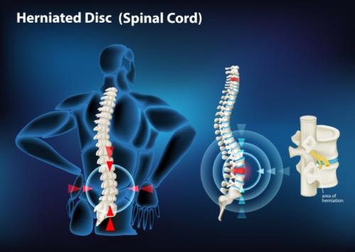 Slipped disc treatment Pune